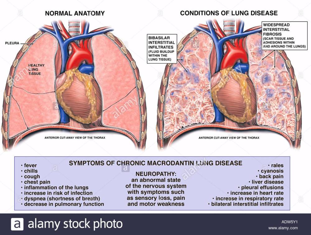 macrodantin-induced-lung-disease-ADW5Y1.jpg