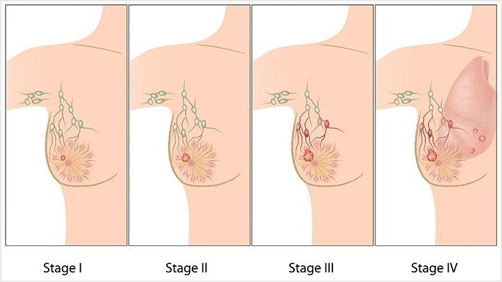 Breast-Cancer-Stages-What-do-They-Mean-722x406.jpg
